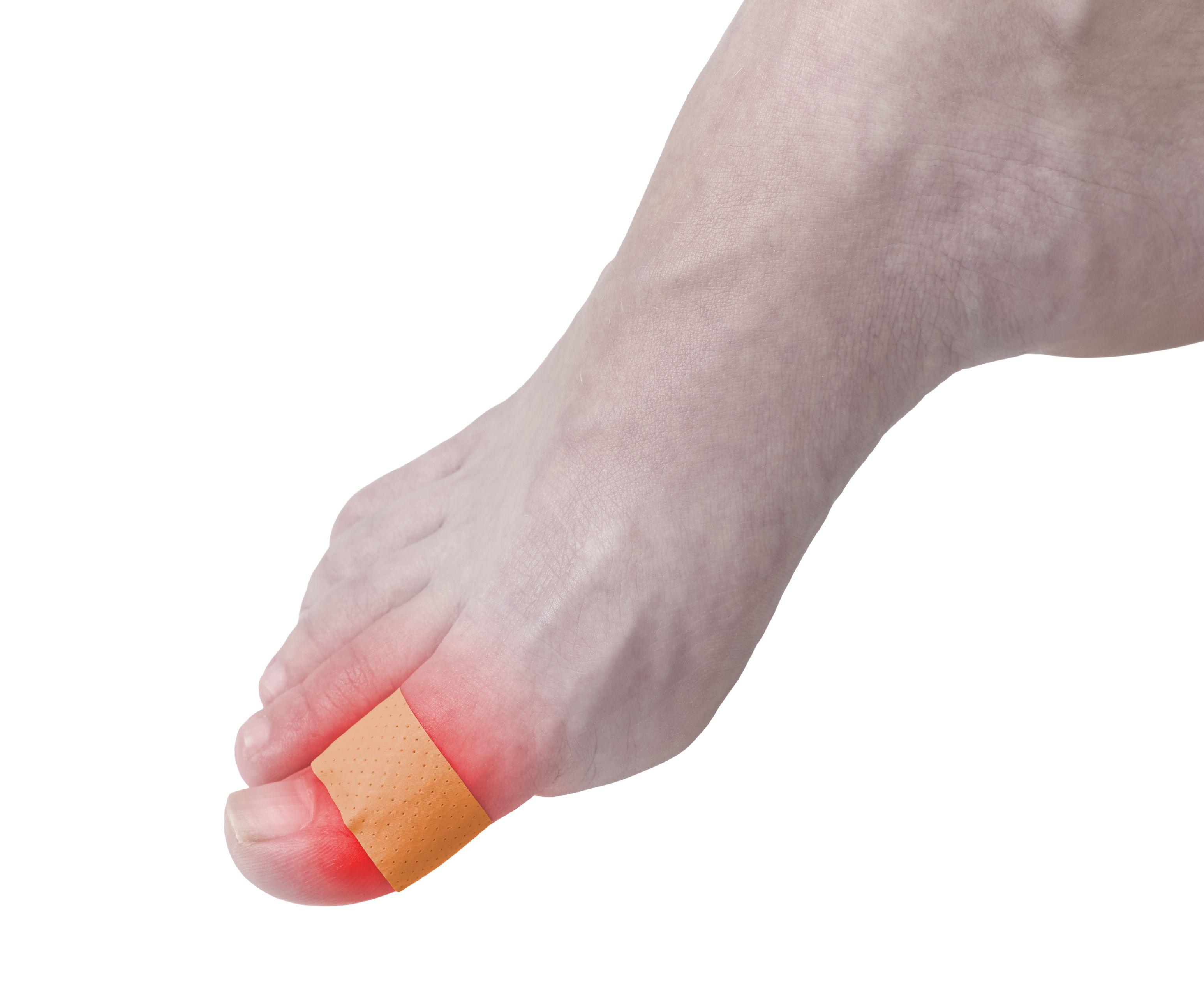 http://www.dreamstime.com/royalty-free-stock-photos-adhesive-healing-plaster-foot-finger-concept-photo-color-enhanced-skin-read-spot-indicating-location-wound-image35209108